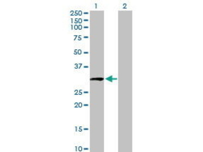 Mouse Anti-CCDC5 Antibody
