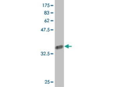 Mouse Anti-COL24A1 Antibody