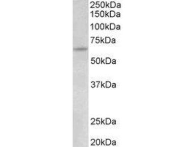 Goat Anti-Tamm-Horsfall Glycoprotein Antibody