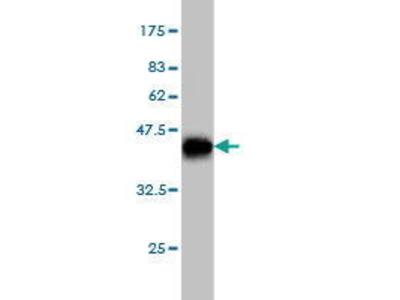 Mouse Anti-NOVA1 Antibody