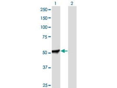 Mouse Anti-PFKFB2 Antibody
