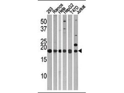 Rabbit Anti-MAP1LC3C, NT Antibody