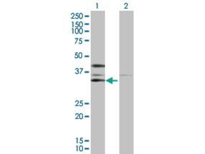 Rabbit Anti-CSNK2A2 Antibody