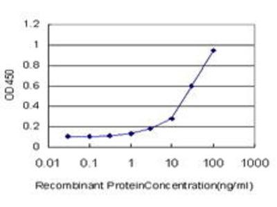 Mouse Anti-MAP1LC3A Antibody