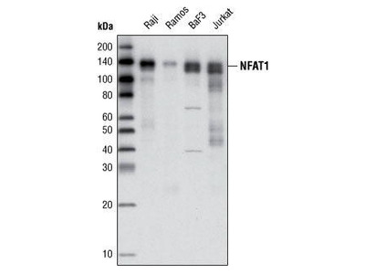 Rabbit Anti-NFAT1 Antibody