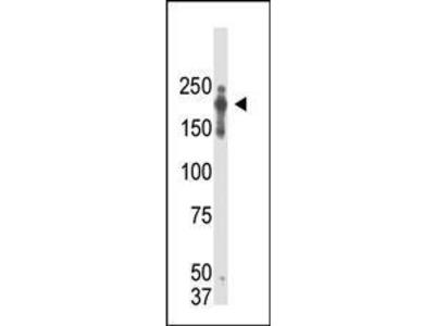 Mouse Anti-PRDM2 Antibody