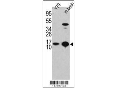 Rabbit Anti-MAP1ALC3 Antibody