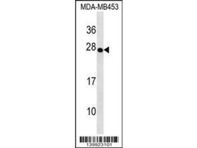 Rabbit Anti-TRDC, ID Antibody