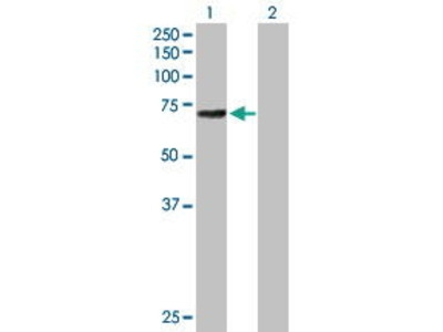 Mouse Anti-ALOX12 Antibody