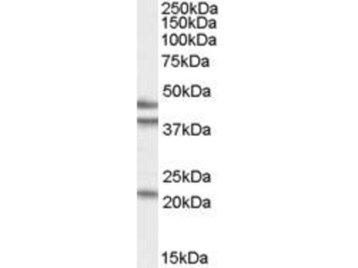 Goat Anti-GABPB1 Antibody