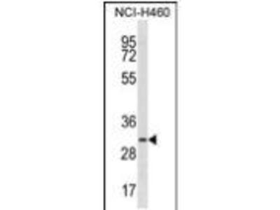 Rabbit Anti-TMIGD2, ID Antibody