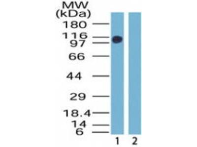 Rabbit Anti-ZNF198 Antibody