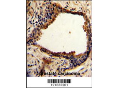 Rabbit Anti-N-myc Downstream Regulated Gene 1 Protein, NT Antibody