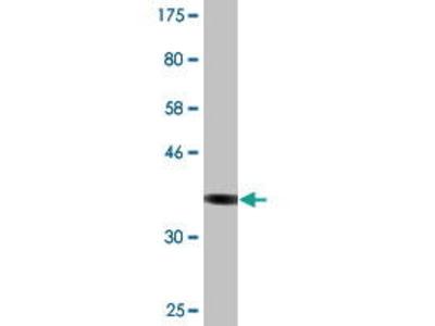 Mouse Anti-CSAD Antibody