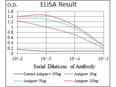 Mouse Anti-CK5 Antibody