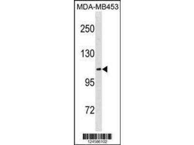 Rabbit Anti-ENPP3, CT Antibody