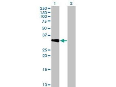 Mouse Anti-CRHBP Antibody