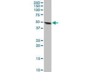 Mouse Anti-KRT32 Antibody