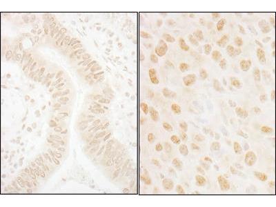 Rabbit Polyclonal OBFC2B Antibody