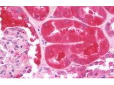 Rabbit Anti-CD2AP Antibody