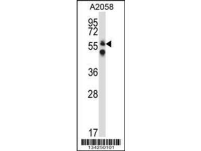Rabbit Anti-DPYSL3, CT Antibody