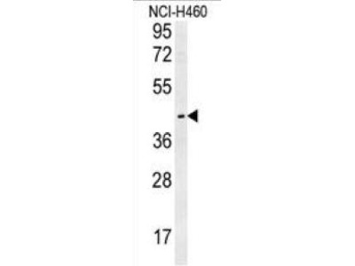 Rabbit Anti-LAPTM5, NT Antibody