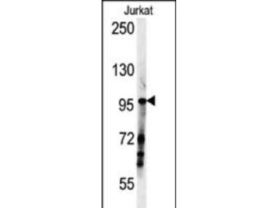 Rabbit Anti-SPAG1, NT Antibody