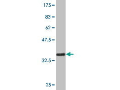 Mouse Anti-HSD17B7 Antibody