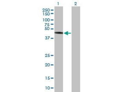 Mouse Anti-TRIM44 Antibody