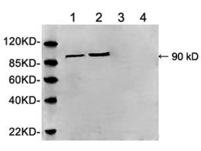 Rabbit Anti-Serotonin Receptor 3A Antibody