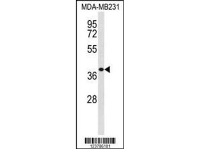 Rabbit Anti-EXTL2, CT Antibody