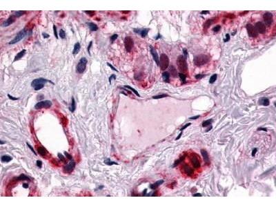 Rabbit Anti-CALCRL Antibody