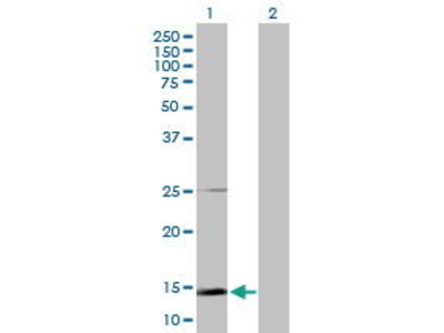 Rabbit Anti-SCGB1A1 Antibody