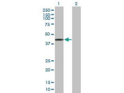 Mouse Anti-KIAA1456 Antibody