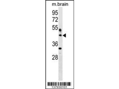 Rabbit Anti-HAPLN4, CT Antibody