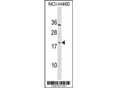 Rabbit Anti-PF4V1, CT Antibody