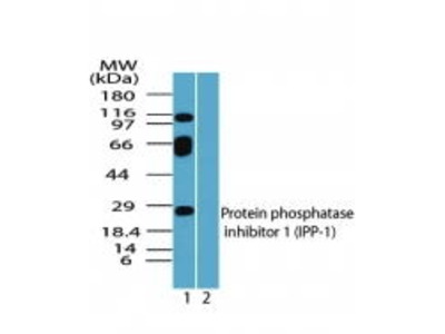 Rabbit Anti-Protein Phosphatase 1 Regulatory Subunit 1A Antibody