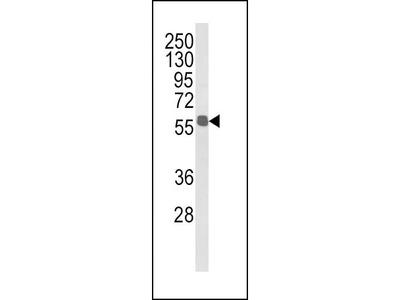 Rabbit Anti-ALDH3B1, ID Antibody