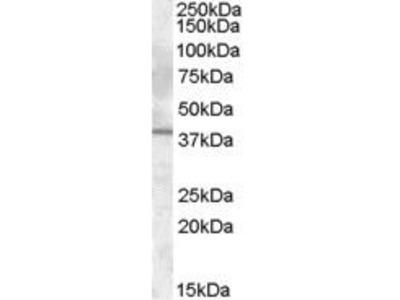 Goat Anti-Interleukin 12 beta Chain Antibody