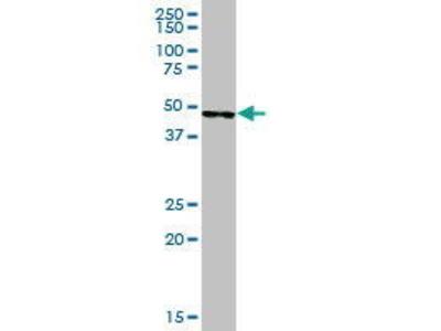 Mouse Anti-SERPINA5 Antibody