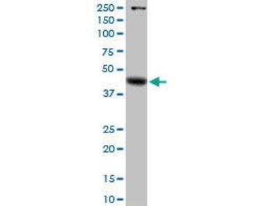 Rabbit Anti-GLA Antibody
