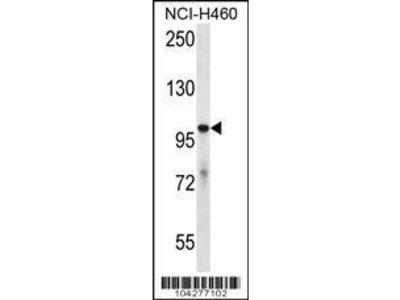Rabbit Anti-USP6, CT Antibody