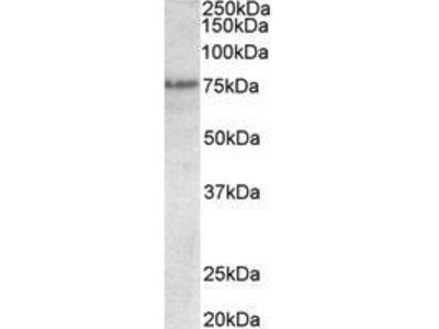 Goat Anti-TRP63 Antibody