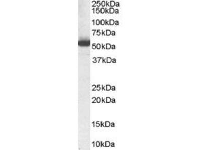 Goat Anti-Aldehyde Dehydrogenase 1A1 Antibody