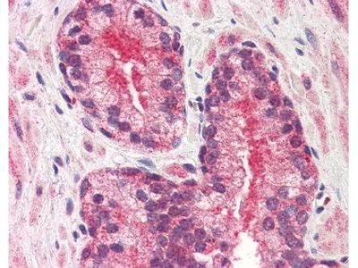 Mouse Anti-CYR61 Antibody