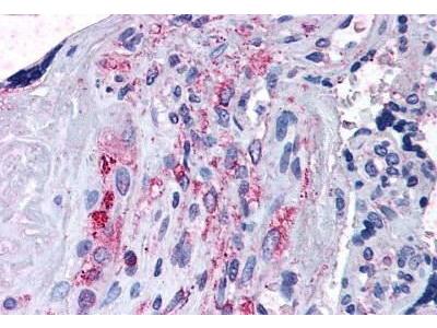 Rabbit Anti-ADAMTS5, NT Antibody