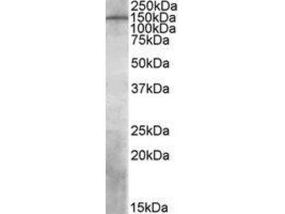 Goat Anti-PREX1 Antibody