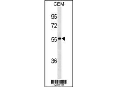 Mouse Anti-lgA, ID Antibody