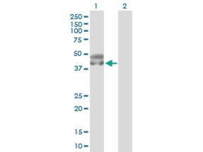 Rabbit Anti-SERPINA5 Antibody