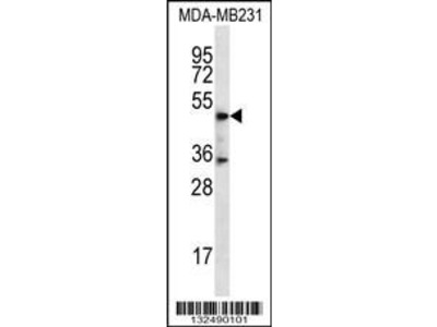 Rabbit Anti-DSN1, CT Antibody